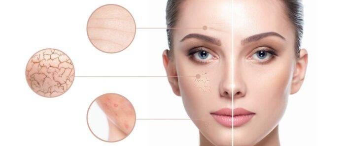 Pelle secca: la skincare perfetta