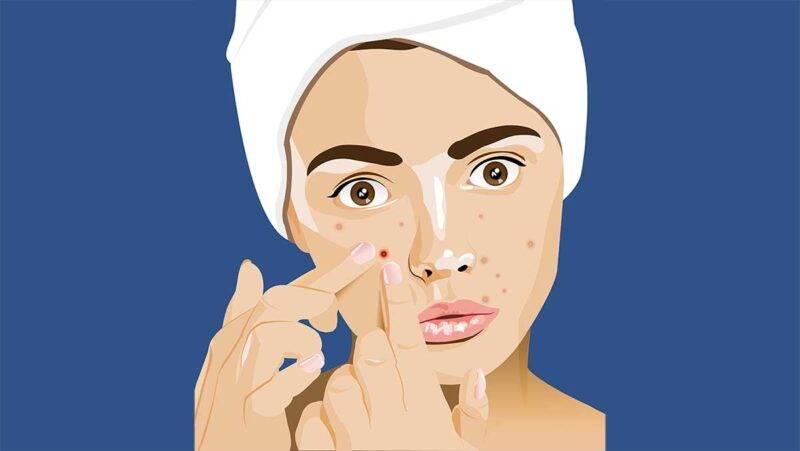Ragazza con brufoli, acne, pulizia del viso