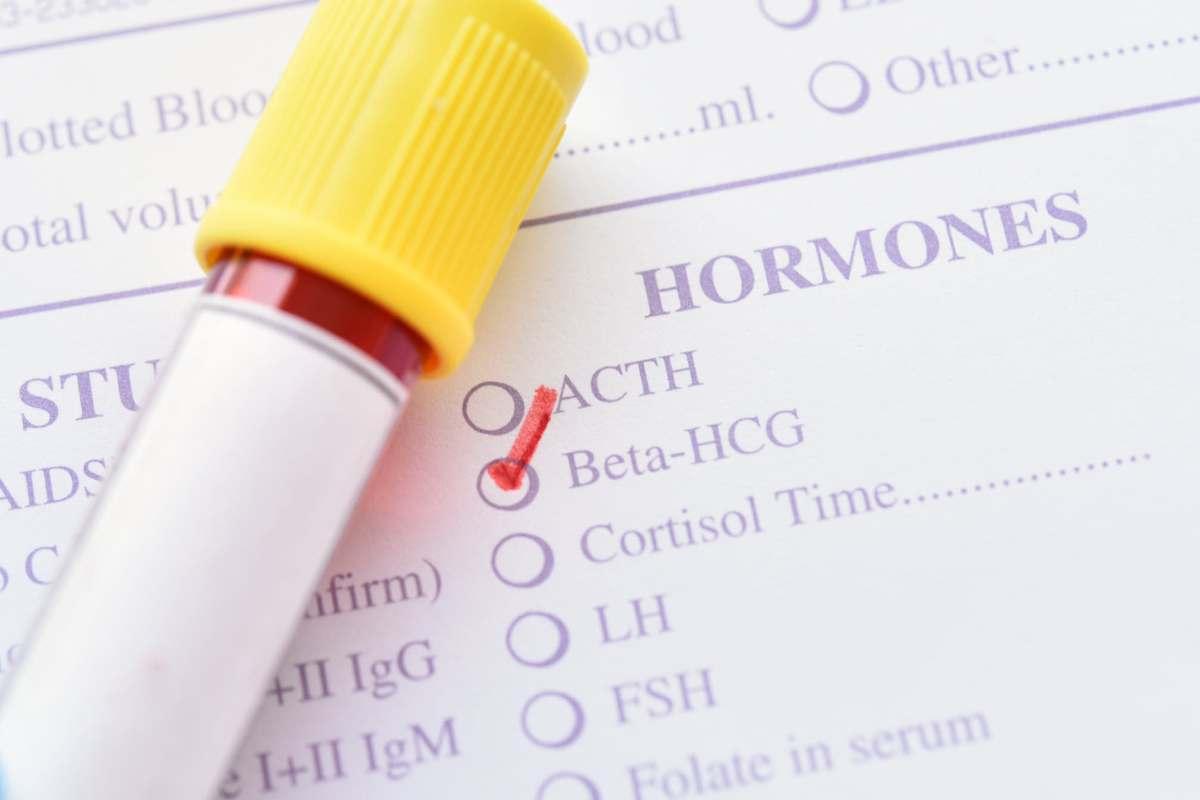 Beta hcg in gravidanza