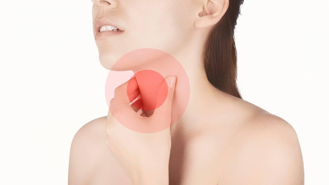 rimedi naturali placche gola