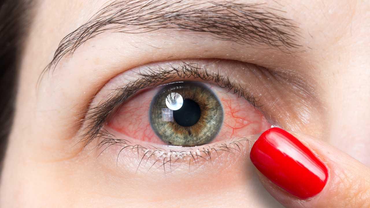 sindrome occhio secco rimedi naturali