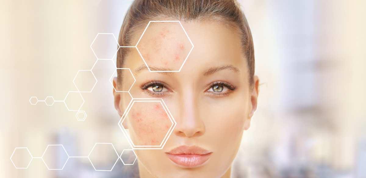 pelle grassa acneica come trattarla