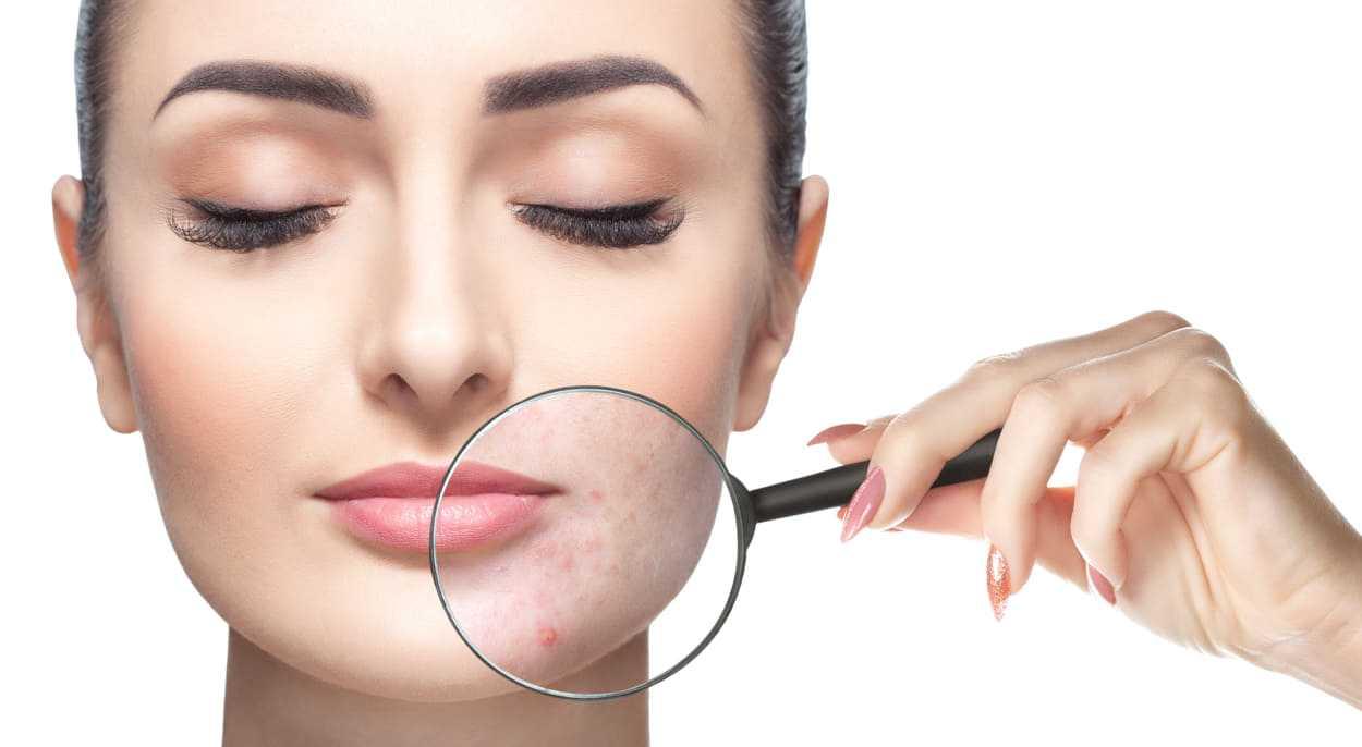 pelle grassa viso i rimedi naturali
