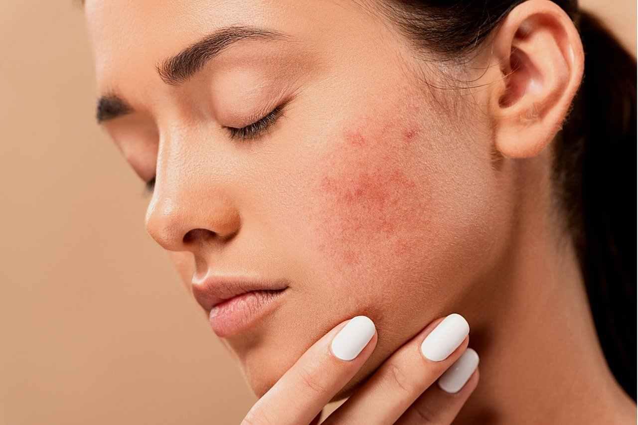 come idratare la pelle secca in modo profondo