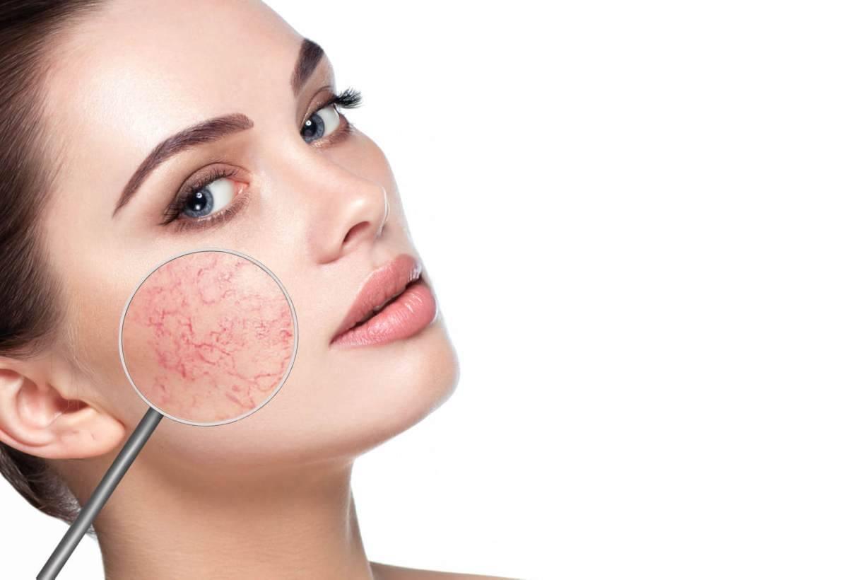 Pelle secca viso: i rimedi naturali per trattarla