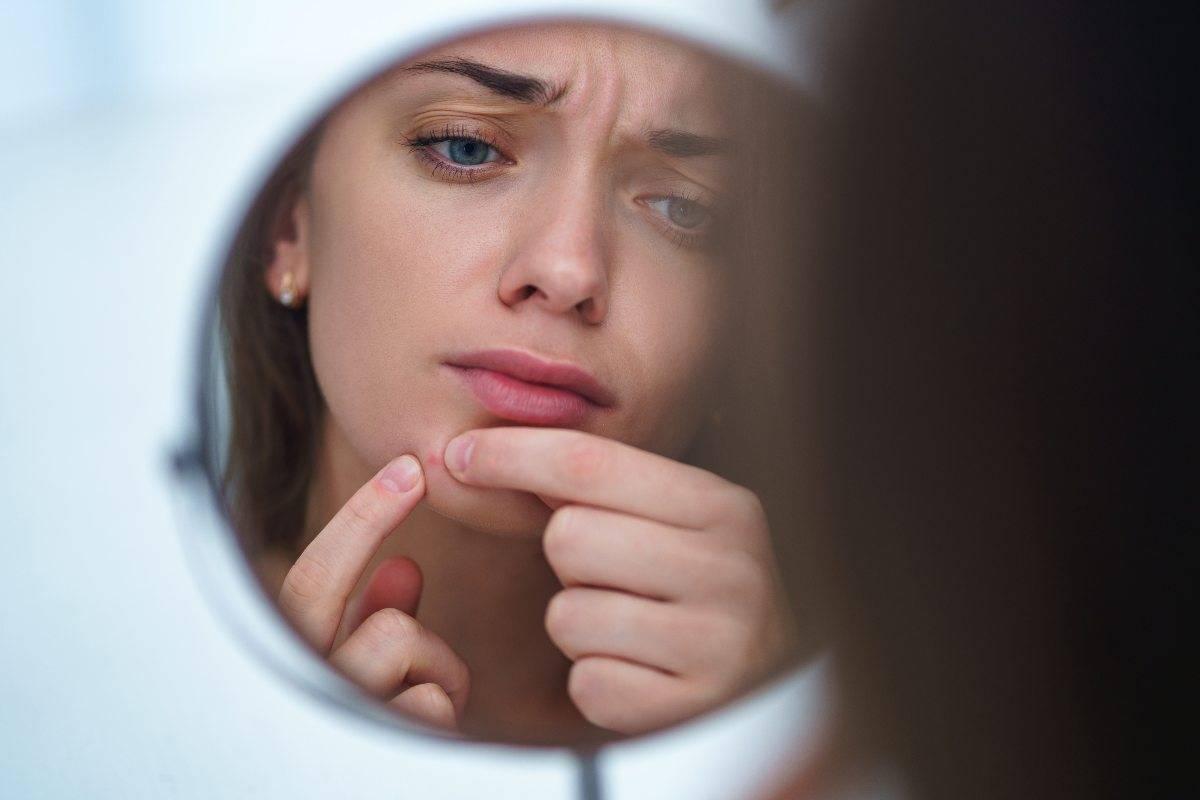 pelle acneica gli oli essenziali per trattarla