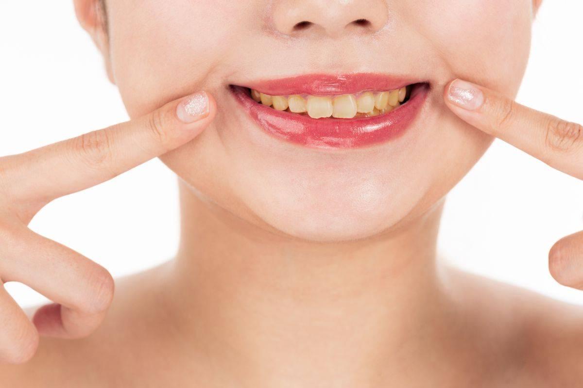 Denti gialli come neutralizzarli con il makeup