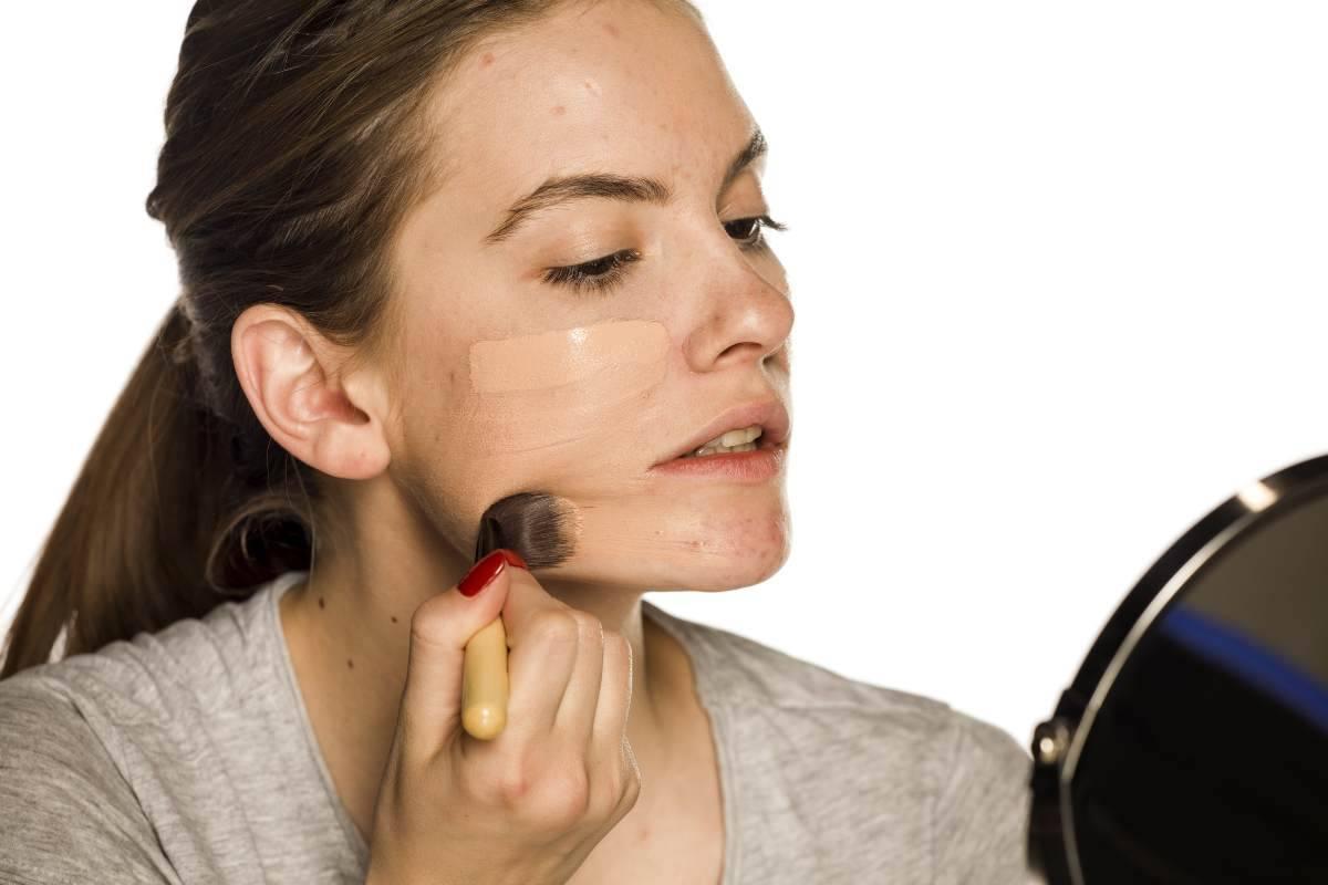 fondotinta acne quale scegliere