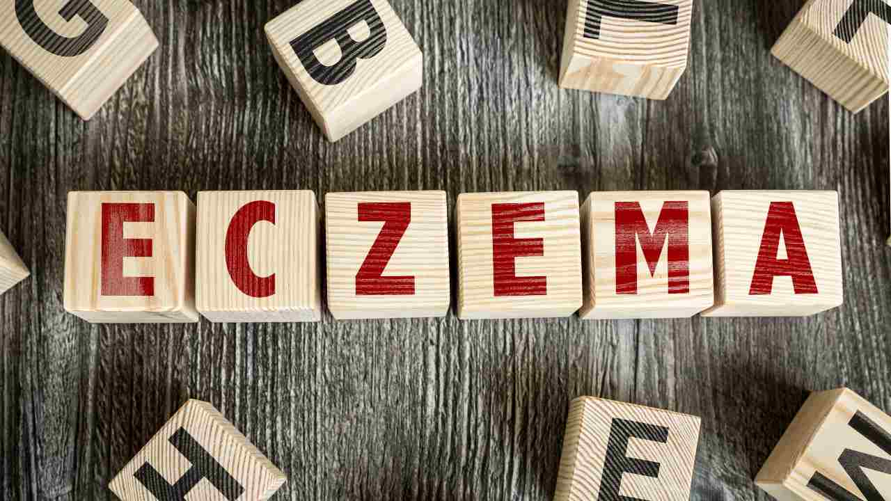 eczema cos'è cause sintomi
