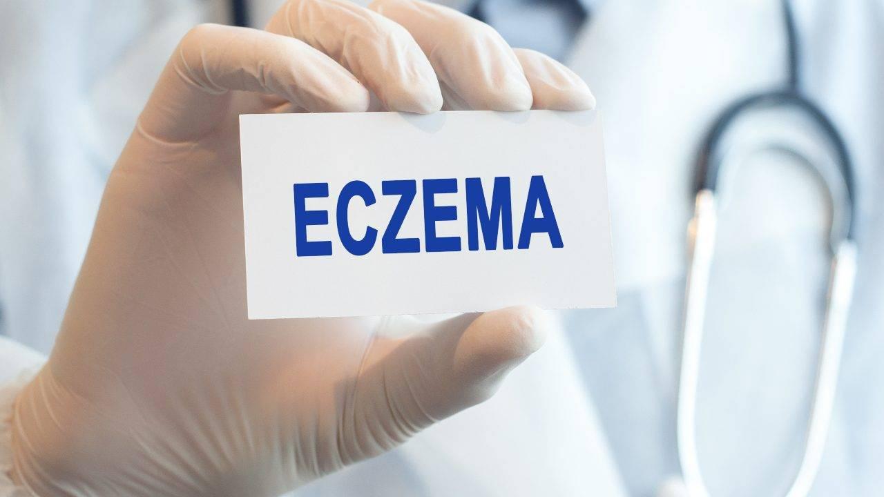 eczema rimedi naturali