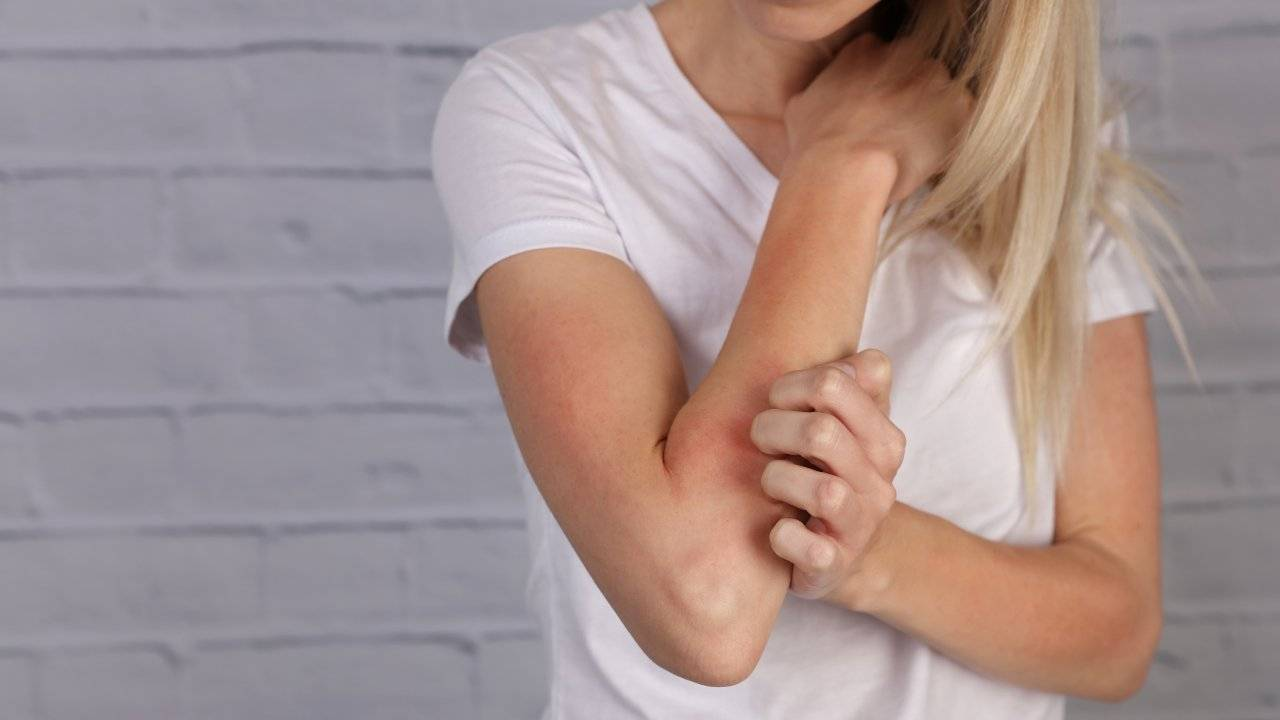 eczema o dermatite cos'è cause sintomi