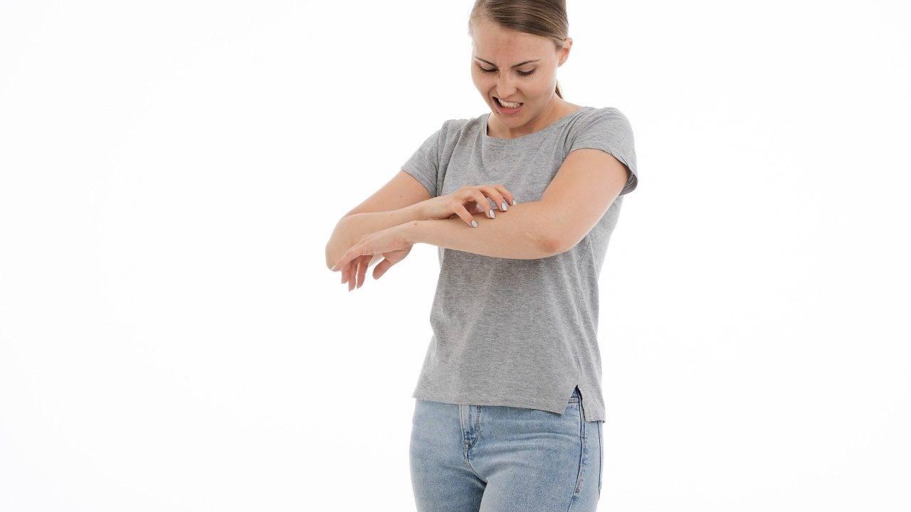 eczema prurito rimedi naturali