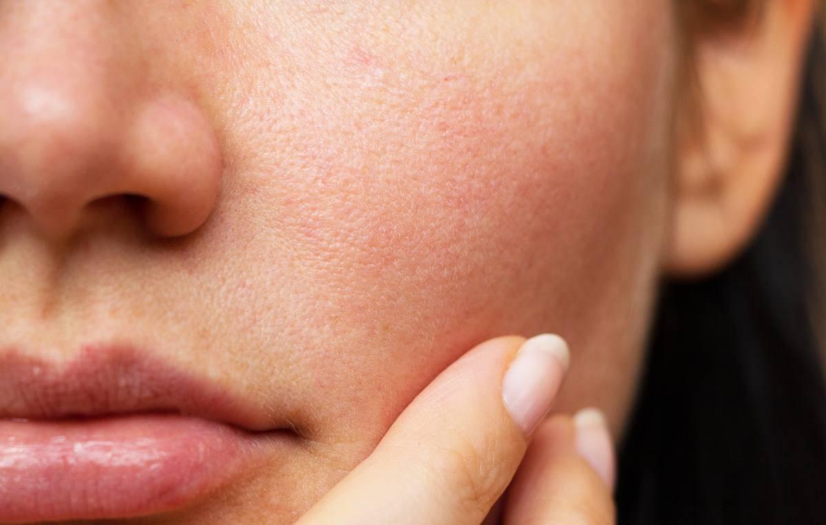 pelle grassa pori dilatati