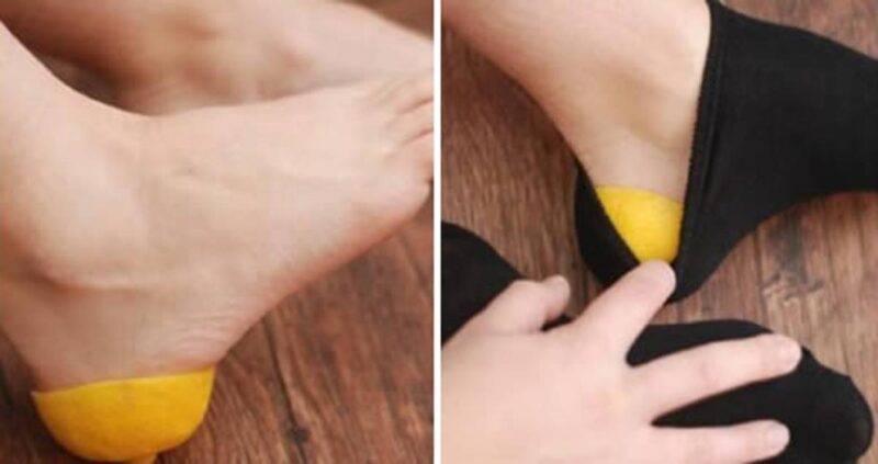 limone cura dei piedi