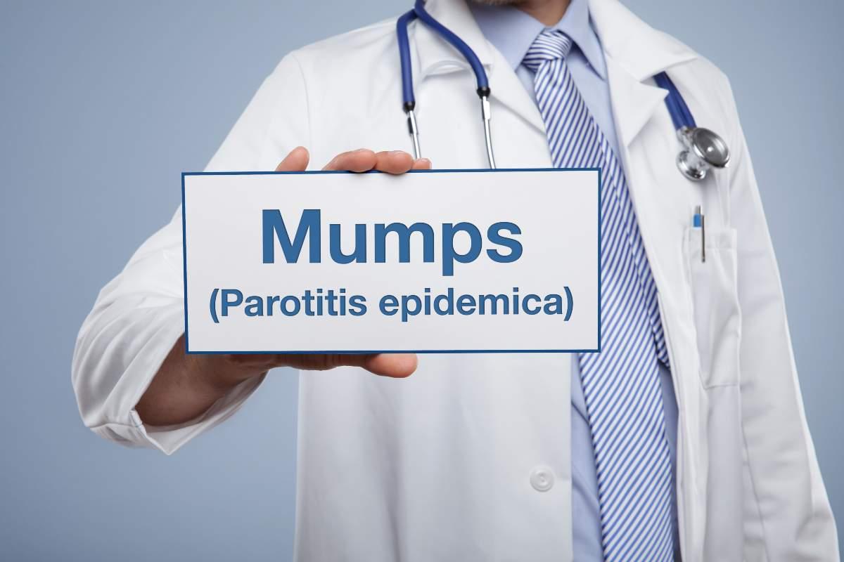 parotite malattia