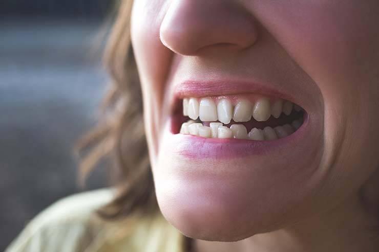 denti perfetti alternative