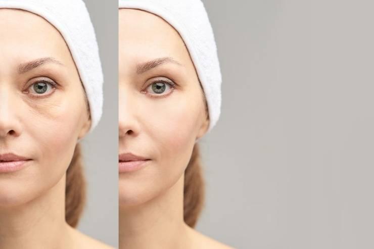 contorno occhi invecchiamento