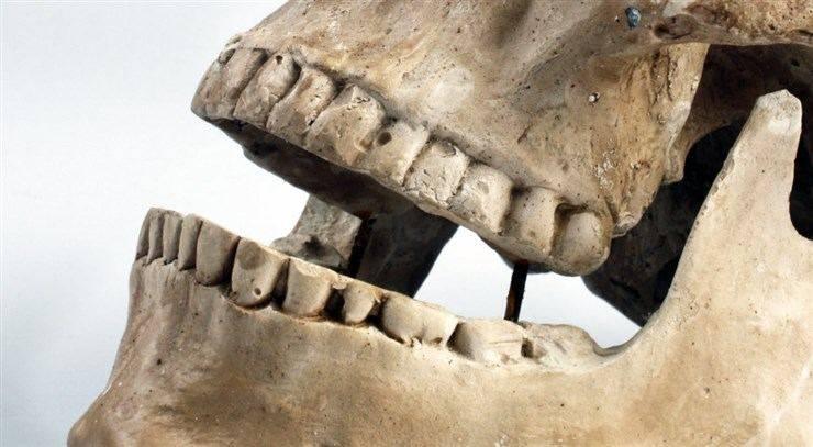 sognare perdere denti