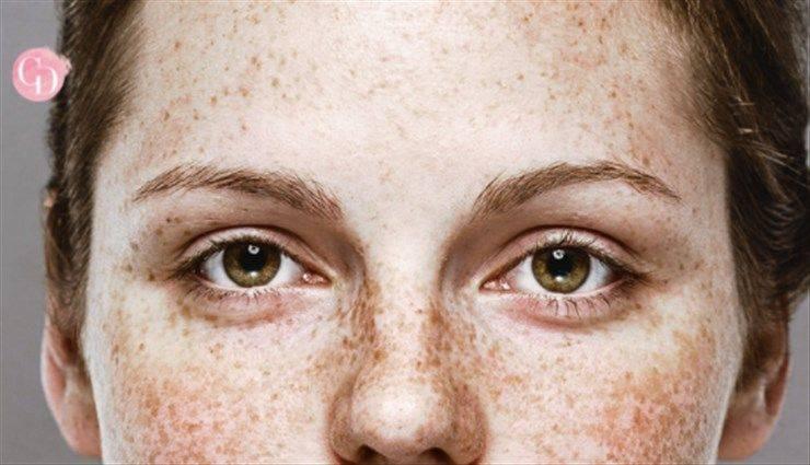 come coprire le macchie scure del viso