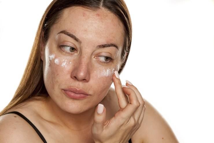 macchie scure viso donna primo piano