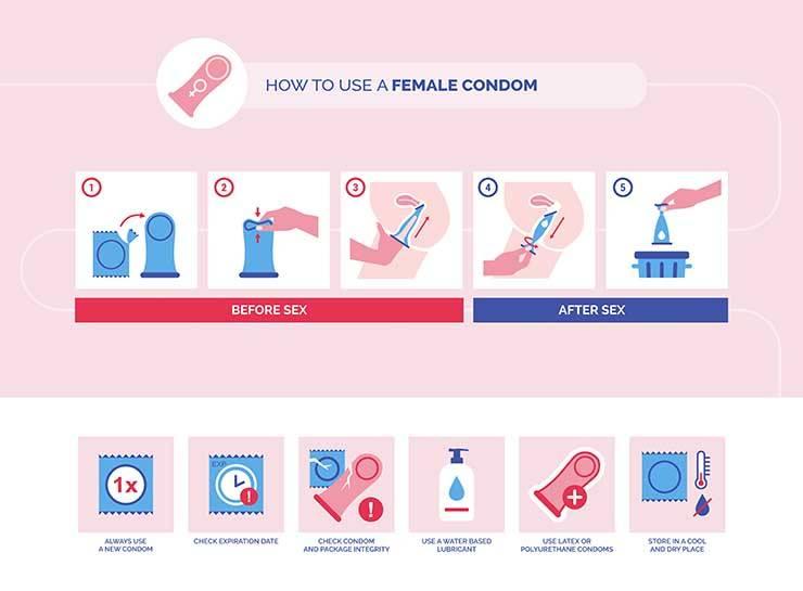 preservativo femminile uso